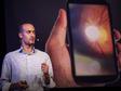 Andrew Bastawrous: Fes-te la propera revisió ocular amb un telèfon intel·ligent