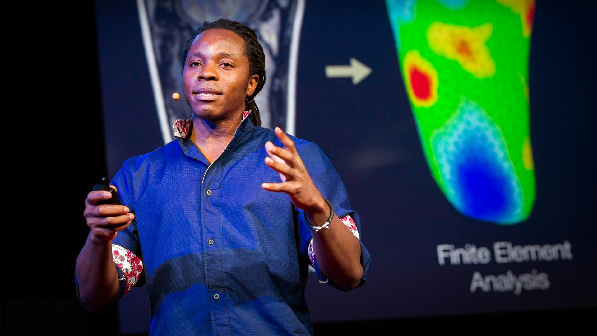 David Sengeh: The sore problem of prosthetic limbs thumbnail